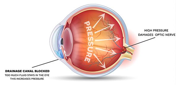 computer și viziune presiune intraoculară